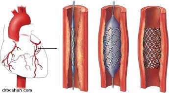 Coronary-angioplasty